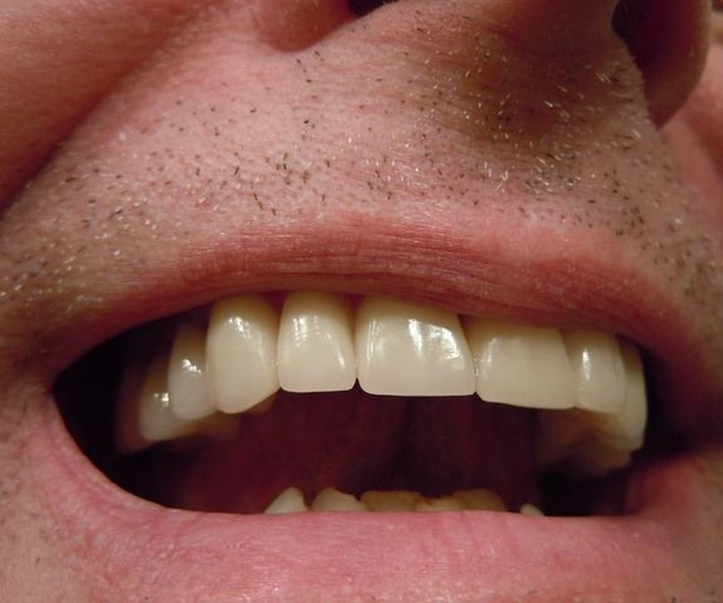 El composite, la solución ideal para una reconstrucción dental
