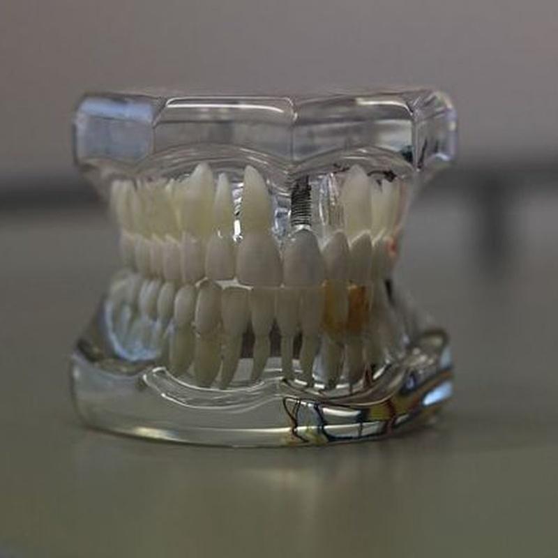 Prótesis fija : Tratamientos de Clínica Dental Herpaden