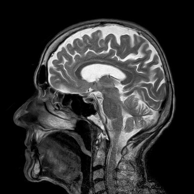 ¿En qué consiste la gammagrafía ósea?