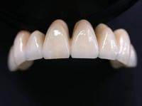 Clínica Dental Herpaden realiza prótesis dental en Ávila
