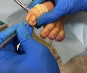 intervención quirúrgicas de uñas