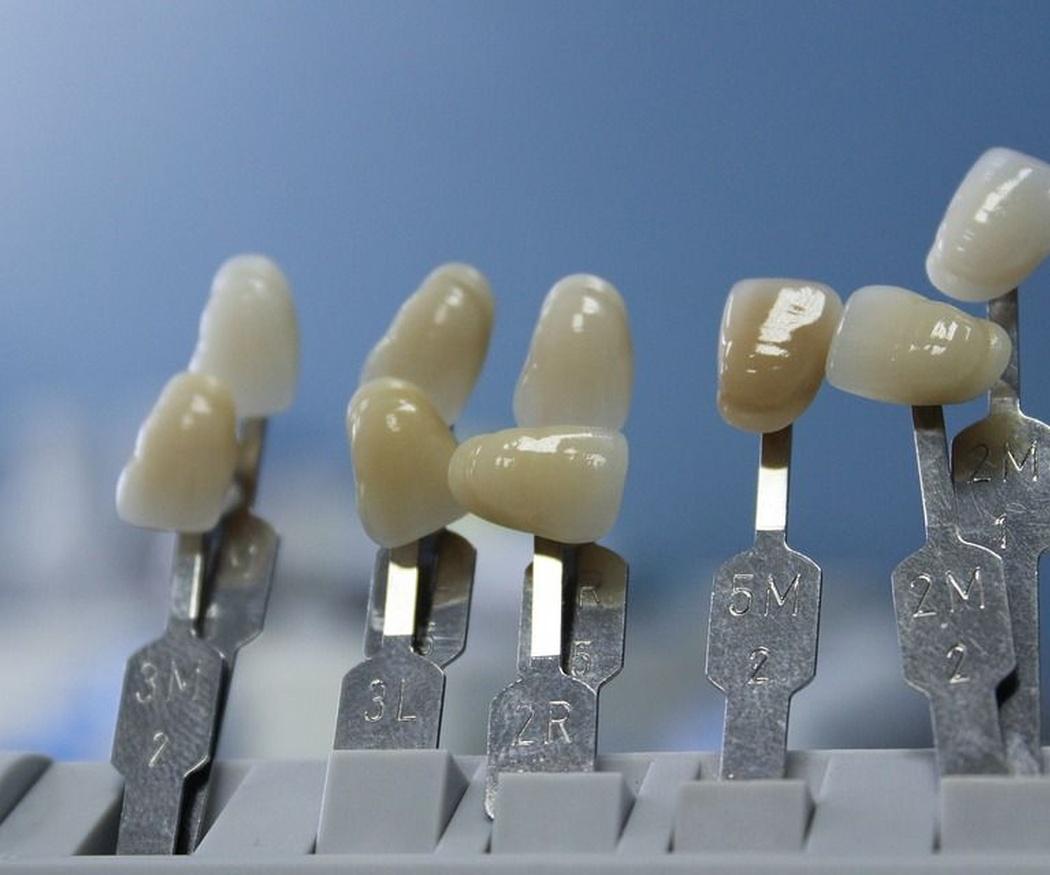 Cómo escoger una clínica dental