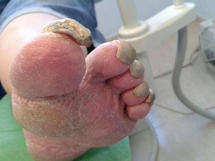 Deformaciones: Servicios de Clinimar Clínica Podológica y Estética. Depilación