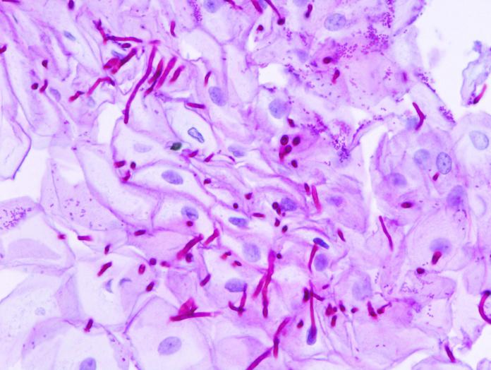 Candidiasis: Cuidados naturales de Herbolario Melisa Alimentación Natural