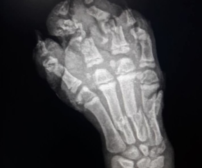 Aplastamiento en la mano