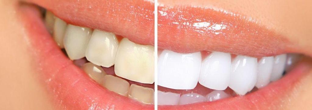 Clínicas dentales en Cabanillas del Campo | Clínica Saludental Javier Escassi Olivares