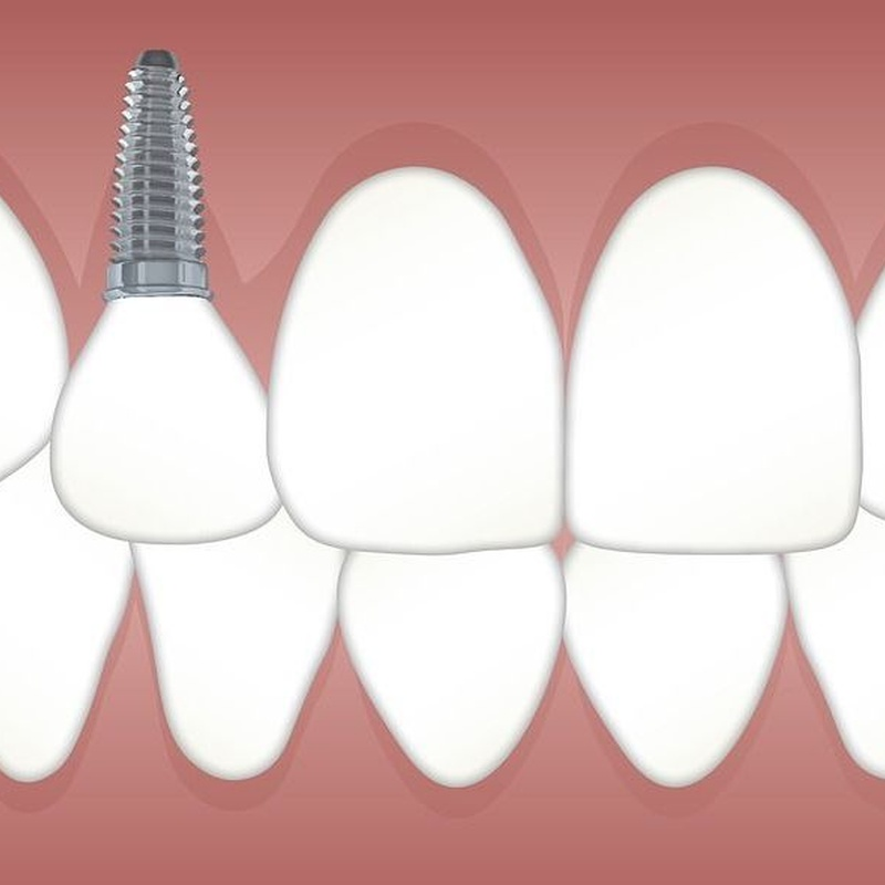 Implante dental: Servicios de Clínica Dental Dr. Ignacio Belsué