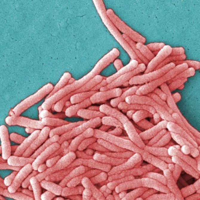 ¿Qué sabes de la Legionella? (I)