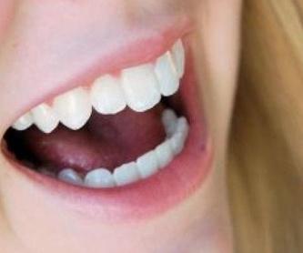 Limpiezas dentales: Tratamientos de Angelina Castro Redondo
