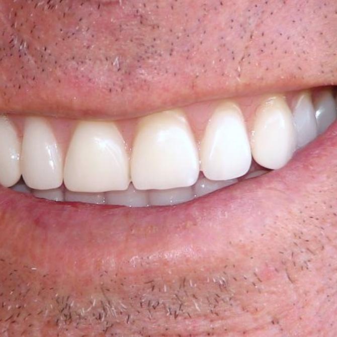 ¿En qué consiste el blanqueamiento dental? (II)