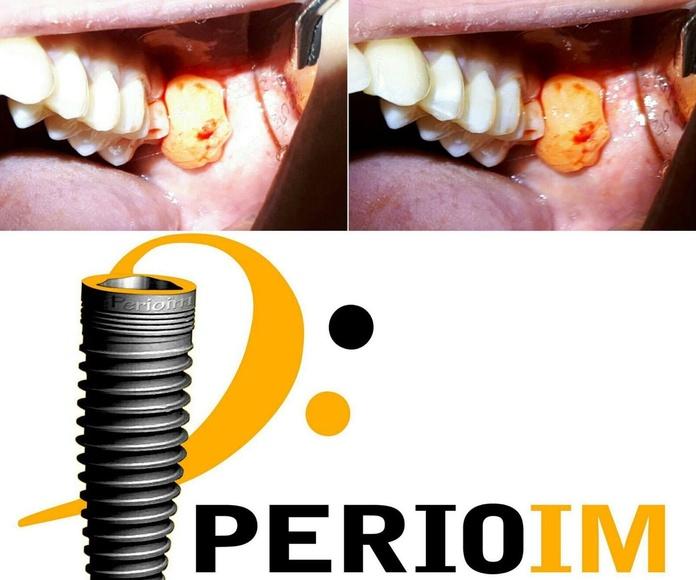 Implantes dentales Torrejón de la Calzada