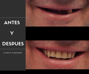 Implantes dentales en Guissona | Iessodent