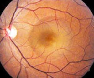 tratamiento glaucoma Asturias