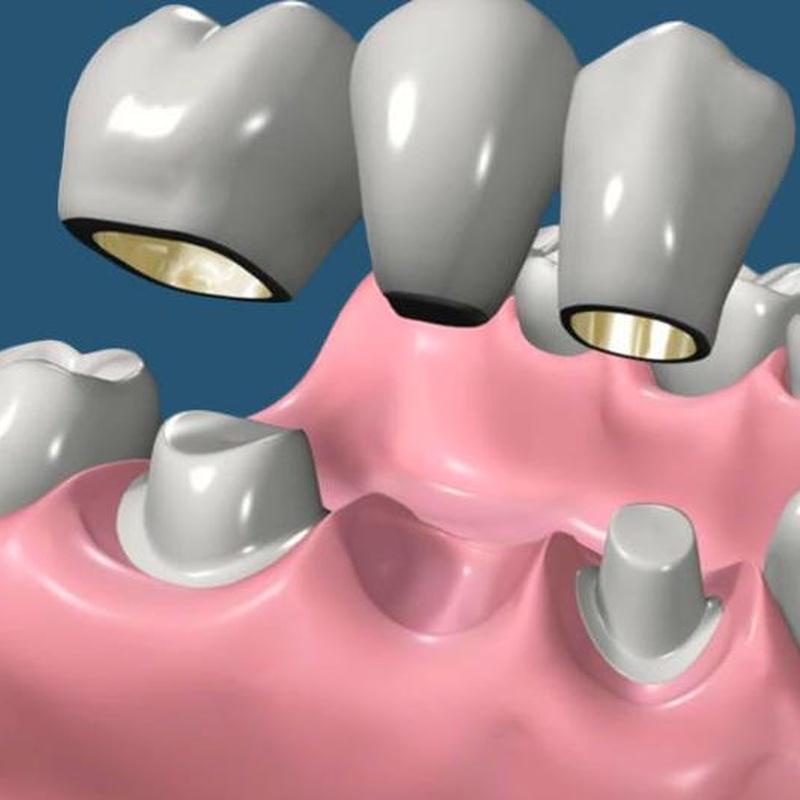 Protesis fija: Tratamientos de Hospident Clínica Dental