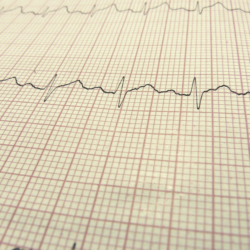 Electrocardiograma: Servicios de Vetalliance Reus Clínica Veterinaria