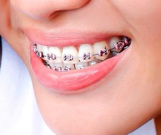 Ortodoncia invisible : Servicios de Dr. Manuel Sáez Ortodoncia