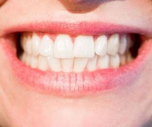 Tratamientos ortodoncia Bilbao.