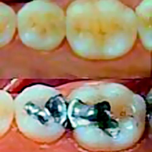 Protésicos dentales en León | Dental Carretero