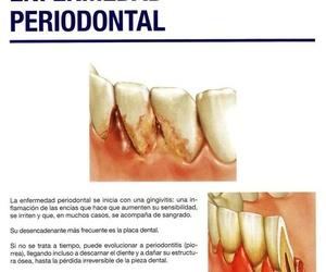 Enfermedad periodoncial