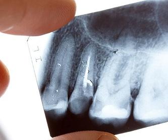Ortodoncia: Tratamientos de Sonría Odontólogos