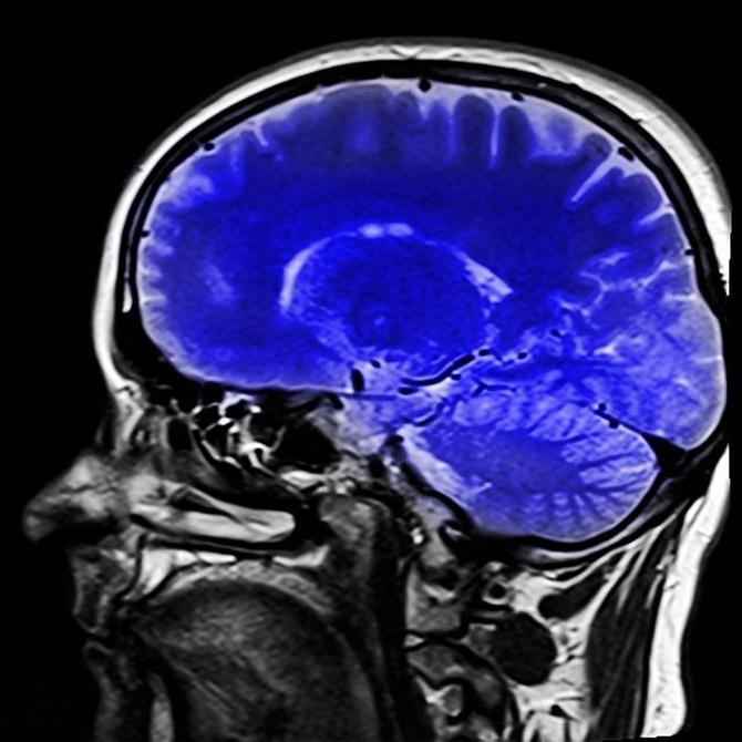 ¿Cómo se tratan los tumores en el sistema nervioso?
