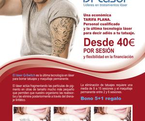 Eliminación de tatuajes con el láser