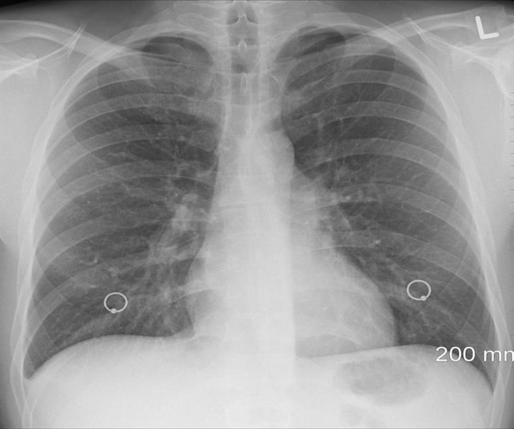 Las enfermedades derivadas del amianto