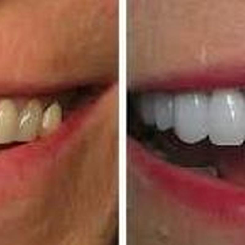 CARILLAS DE PORCELANA: Servicios de Clínica Dental Dra. Belkys Hernández Cabrera