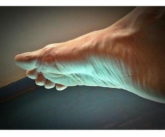 Tratamiento de la piel: Tratamientos  de Alicia Blasco Gutiérrez