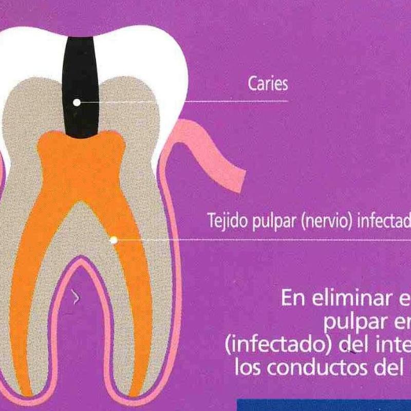 Endodoncia: Servicios   de Clínica Dental Dr. Javier Pérez Martínez