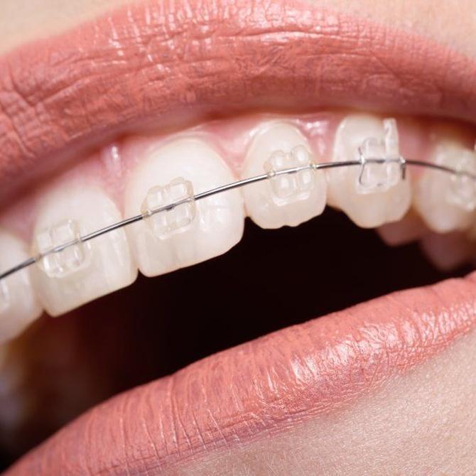 El método de la ortodoncia invisible