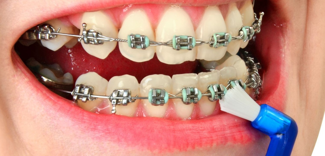 Ortodoncias y periodoncias en Vicálvaro, Madrid