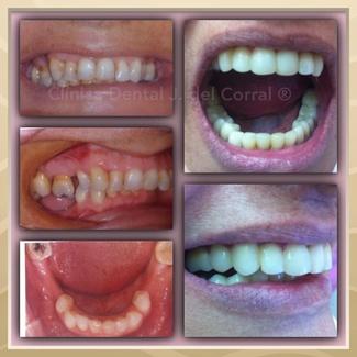 Tratamiento Dental Estético Conservador.  Madrid/Hortaleza