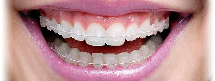 Ortodoncia: Tratamientos de Dental Valls