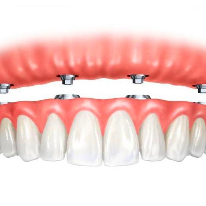 Dentaduras sobre implantes: Tratamientos de Clínica Dental Les Mèlies