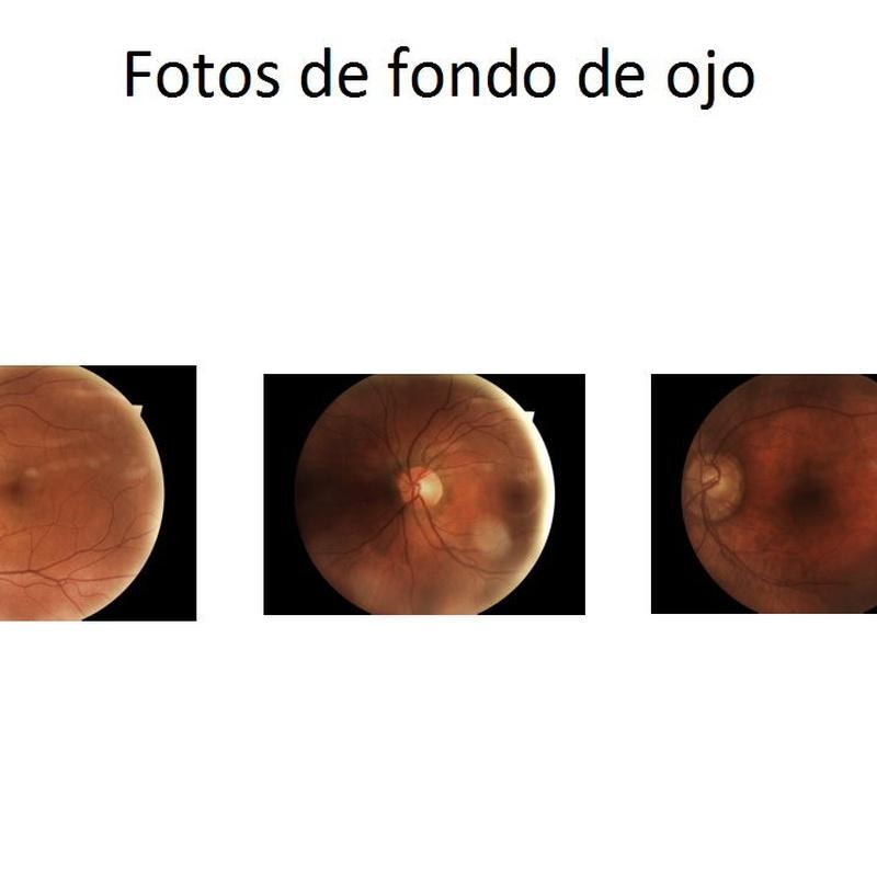 Fondo de ojos: Nuestros Servicios de Óptica Line