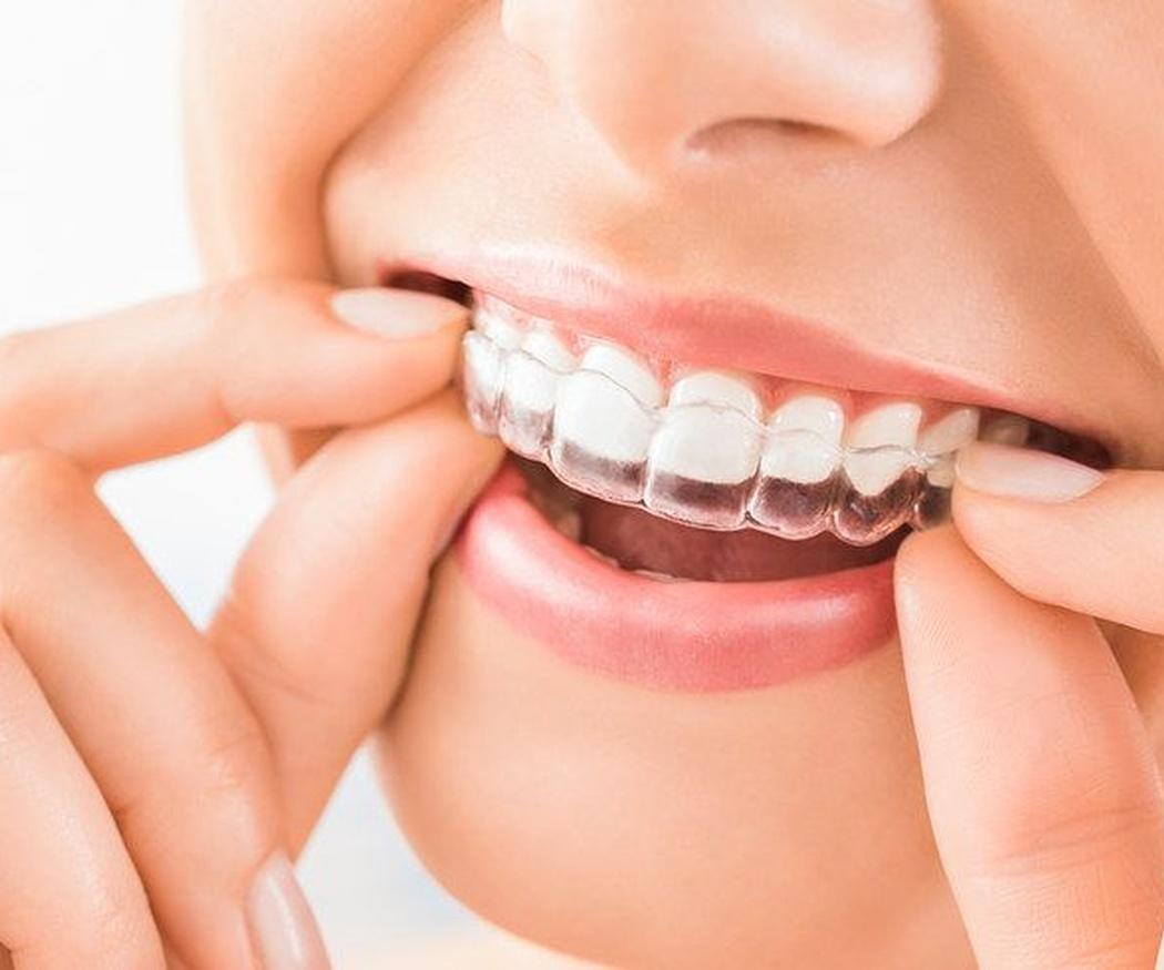 Ventajas cotidianas de la ortodoncia invisible
