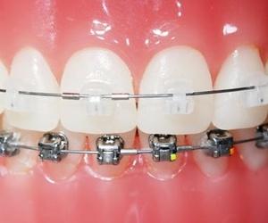 Todos los productos y servicios de Clínicas dentales: Clínica Dental Dr. Esteve Padrós