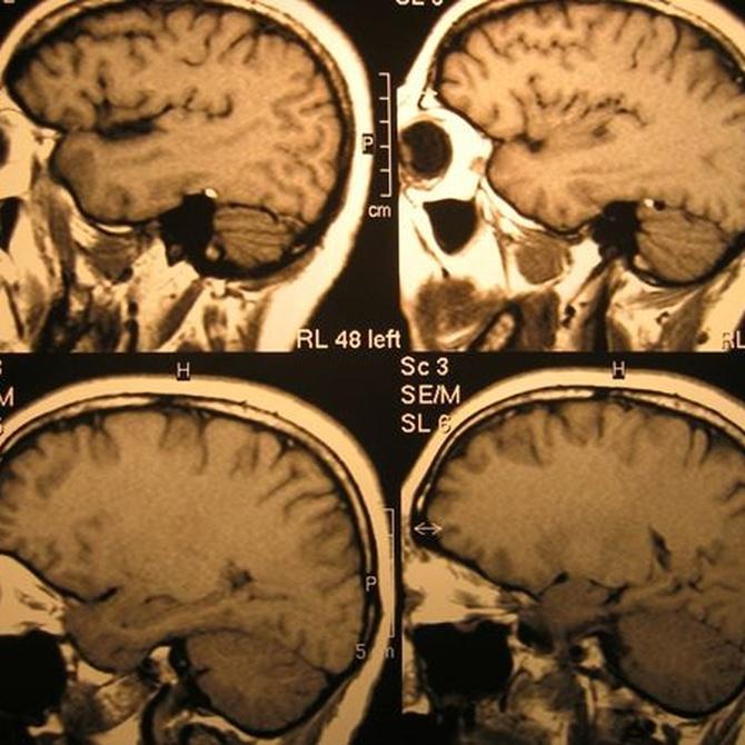 ¿En qué consiste el radiodiagnóstico?