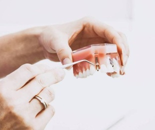 Endodoncias y prótesis