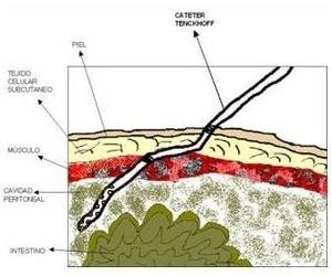 Colocación del catéter de diálisis peritoneal