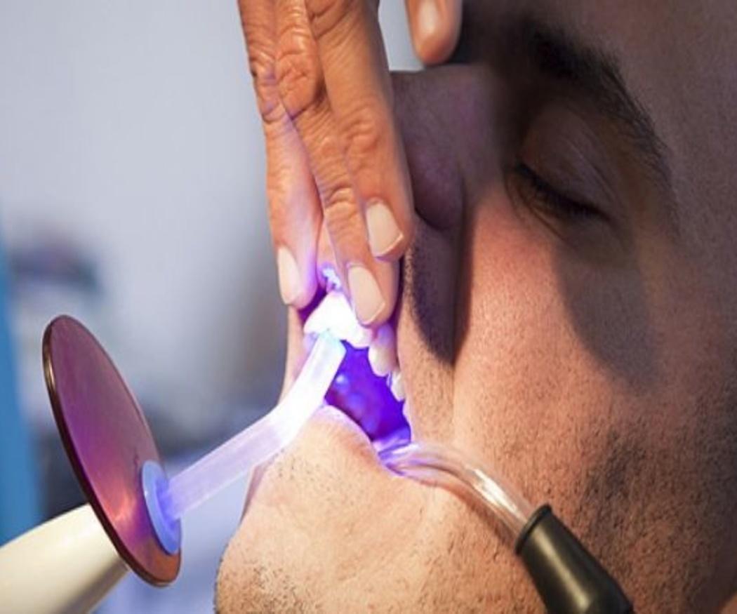 Ventajas del blanqueamiento de dientes