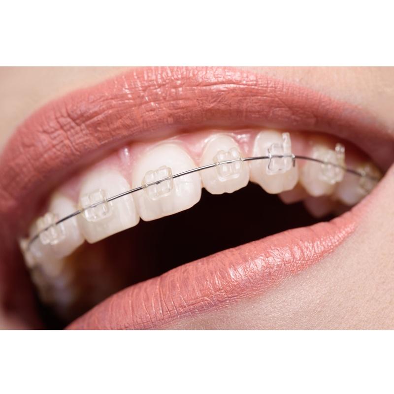 Tipos de ortodoncia: Tratamientos Dentales de Clínica Dental Getafe