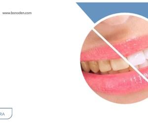 Clínicas dentales en Granada | Bonoden
