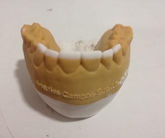 Prótesis fija: Servicios de Xanfra Centro Odontotécnico