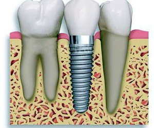 Implante en Basauri