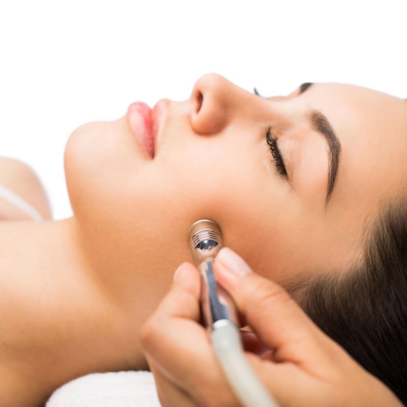 Microdermoabrasión: Tratamientos de Rosana Montiano - Salón de Belleza