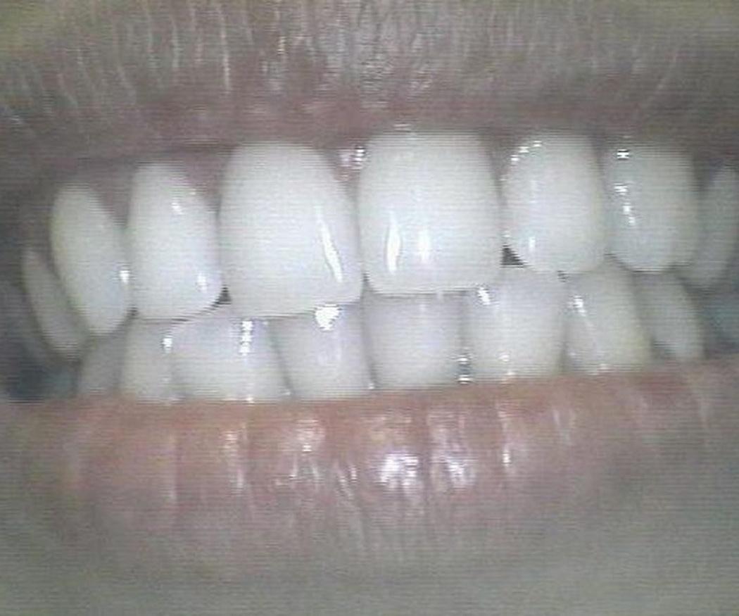 ¿Qué puedo hacer si aprieto inconscientemente los dientes?