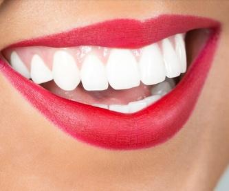 Periodoncia: Catálogo de Clínica Dental Mª Teresa Garrido