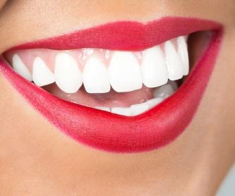 Ortodoncia: Tratamientos Dentales de Centre Odontologic Cornella